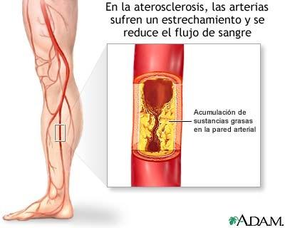 La figura A muestra una arteria normal por la que la sangre circula normalmente.